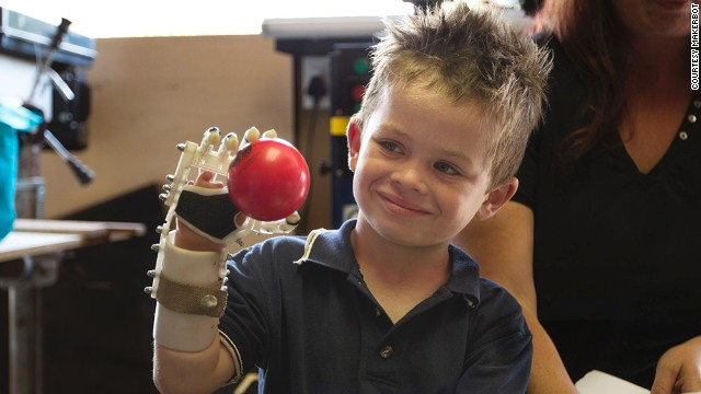 The endless possibilities of 3D prosthetic printing
